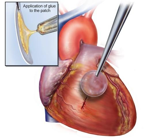 Heart Glue 1